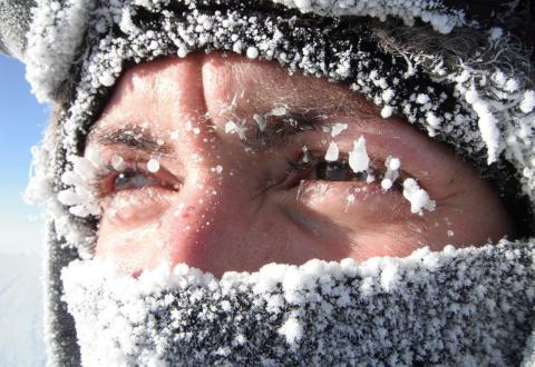 Вчені з'ясували, що мороз лікує головний біль