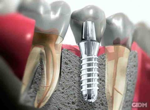 Лікарі застерігають про неприємні хвороби після встановлення імплантів зубів