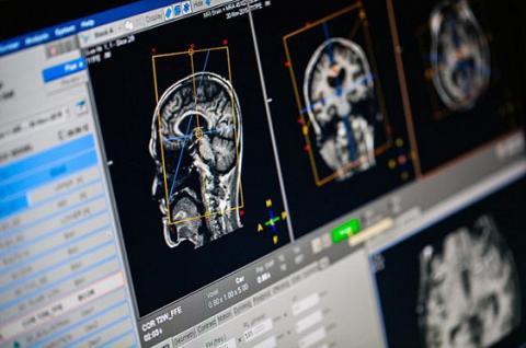 Вчені навчили комп'ютер обчислювати вік мозку людей