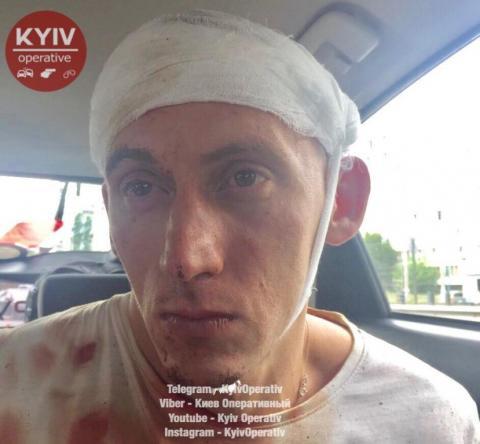 В Києві загинув працівник автомийки (ФОТО)