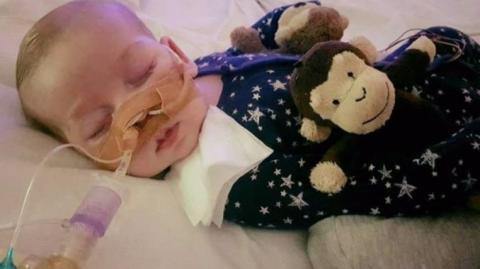 У Британії померло поміщене судом у госпіс немовля з рідкісною хворобою