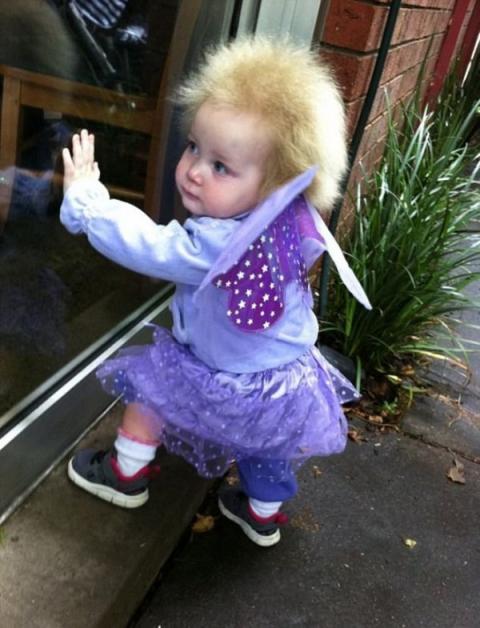 Незвичайний синдром: а ви вже бачили найкудлатішу дівчинку світу? (ФОТО)