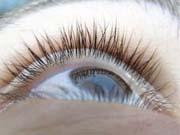 Розроблено метод 3D-друку живої сітківки ока