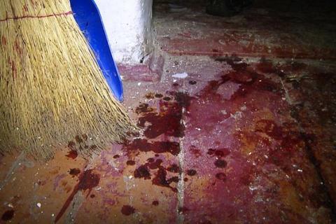 У Вінницькій області чоловік кинув гранату у житловий будинок, є постраждалі