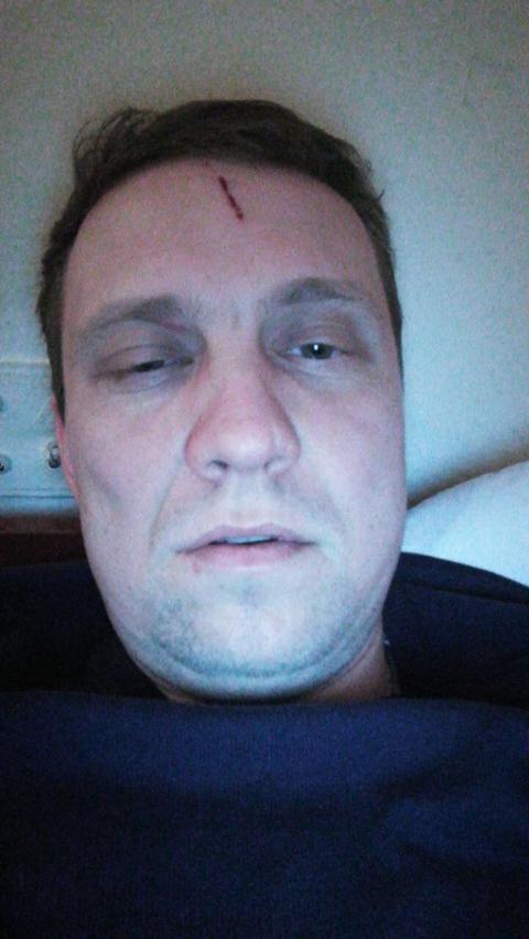 УКРОП заявив про побиття депутата на Київщині через забудову