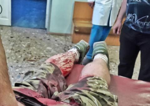 У Києві напали на колишнього захисника ДАП