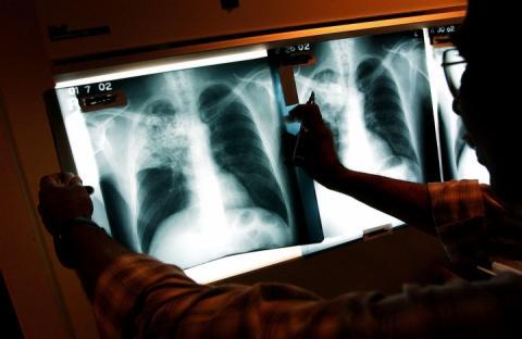 Супрун: Кожні 20 секунд пневмонія забирає життя однієї дитини