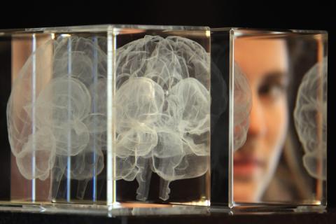 В середньому мозок жінок на чотири роки молодший за чоловічий, – вчені