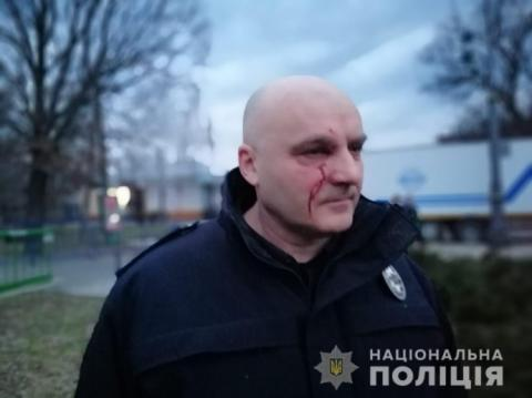 Внаслідок сутичок у Черкасах постраждало 15 поліцейських