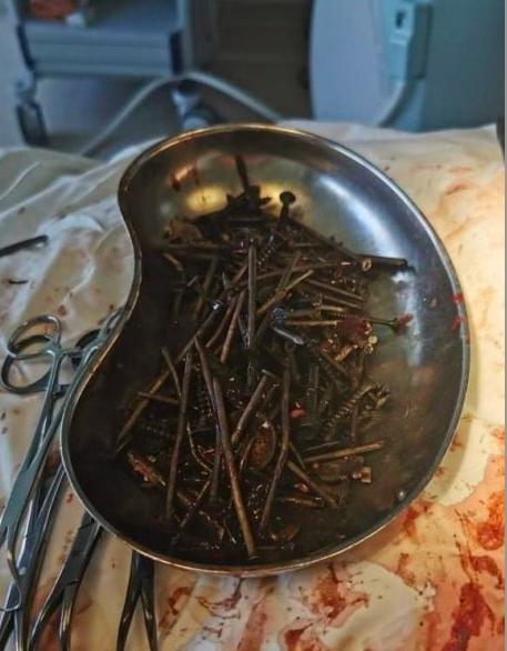 У Литві медики видалили з шлунка чоловіка кілограм цвяхів, шурупів і гайок